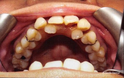 Full Arch Restoration Patient Before