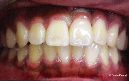 Implant Supported Single Crown