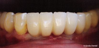 Example of a single implant supported bridge.